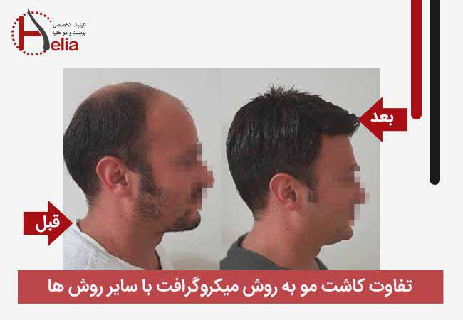 The difference between micrograft hair transplantation and other methods