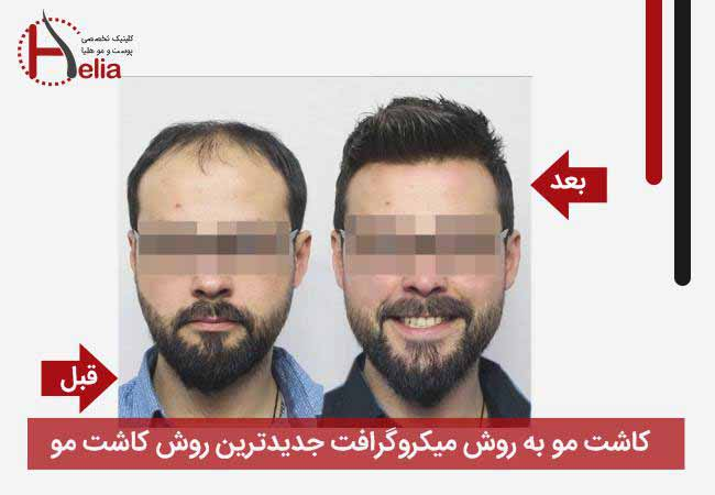 The difference between micrograft hair transplantation is the latest method of transplantation