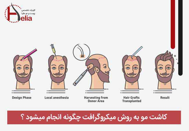 How is hair transplantation done by micrograft method?