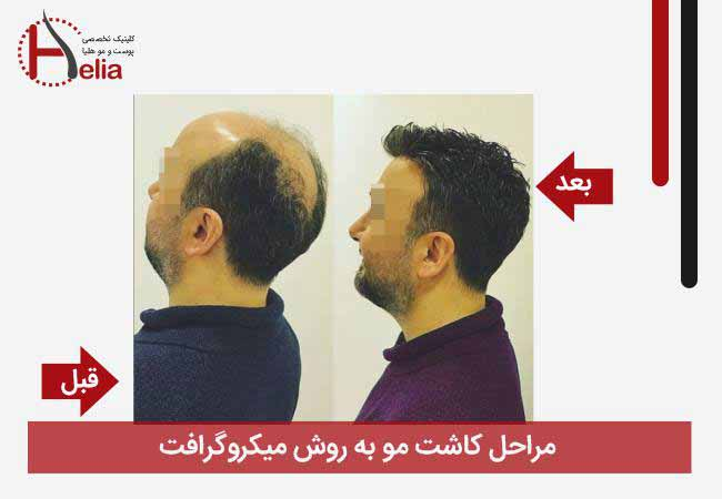 Stages of hair transplantation by micrograft method