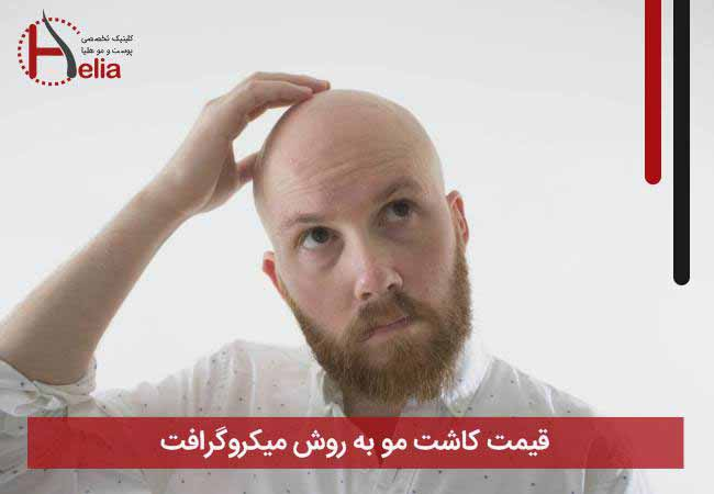 The price of hair transplantation by micrograft method