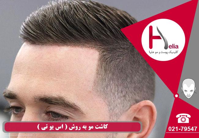 کاشت مو به روش SUT چگونه است؟