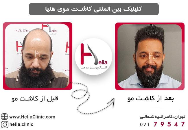 کاشت مو به روش SUT چگونه است ؟