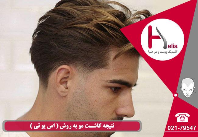نتیجه کاشت مو به روش sut