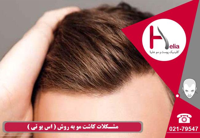 کاشت موی طبیعی به وش SUT (اس یو تی)