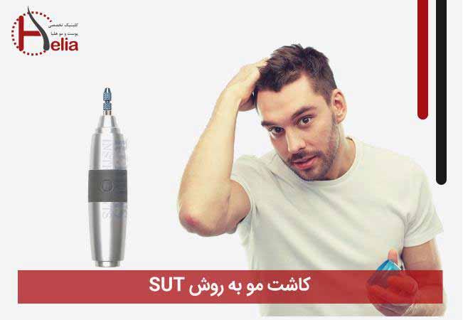 پیوند موی طبیعی به روش sut
