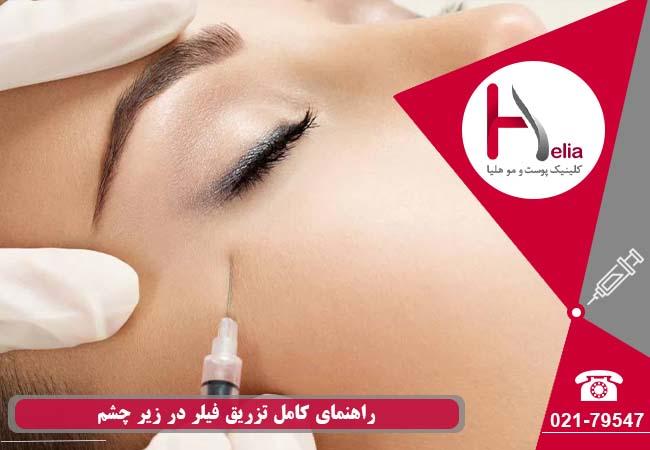 تصویر از تزریق ژل به زیر چشم برای زیبایی
