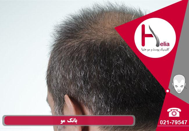 تصویر از بانک مو چیست و چقدر مهم است ؟