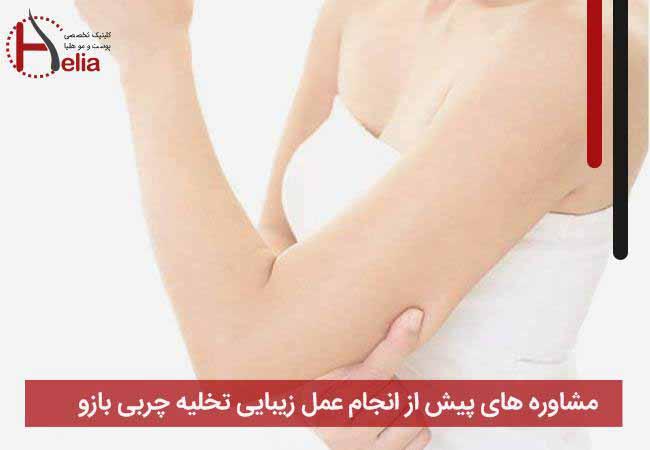 مشاوره های پیش از انجام عمل زیبایی تخلیه چربی بازو
