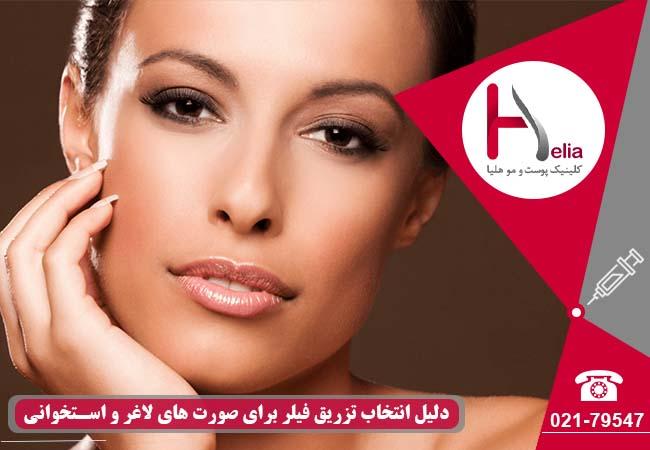 تصویر از تزریق ژل برای صورت های لاغر