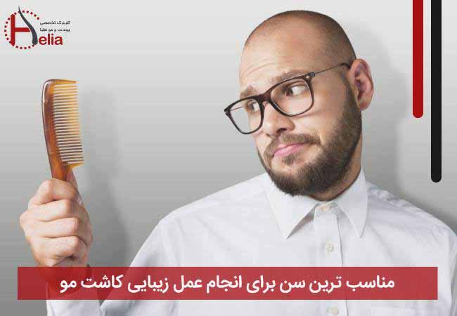 مناسب ترین سن برای انجام عمل زیبایی کاشت مو