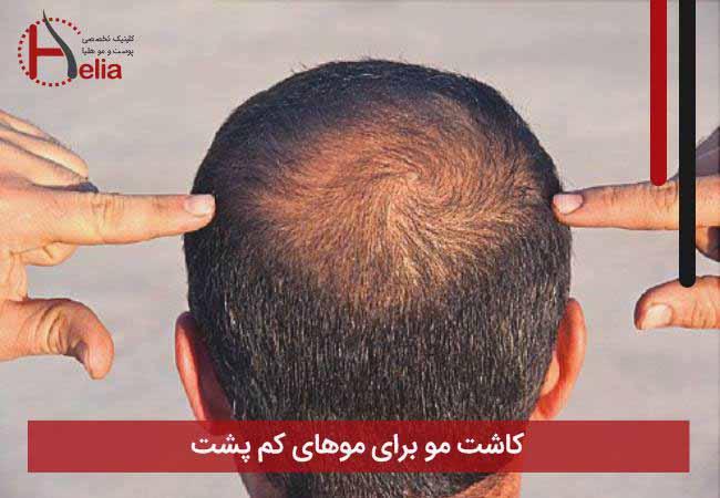 تصویر از کاشت مو برای موهای کم پشت