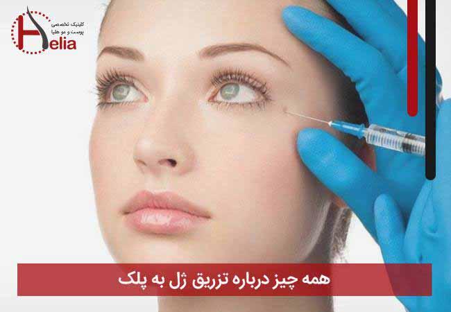 تصویر از همه چیز درباره تزریق ژل به پلک