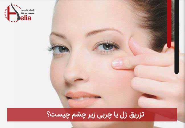 تصویر از تزریق ژل یا چربی زیر چشم چیست؟