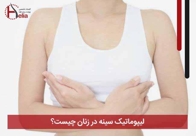 تصویر از لیپوماتیک سینه در زنان چیست؟