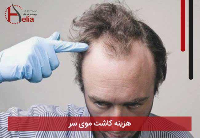 تصویر از هزینه کاشت موی سر
