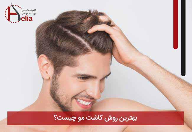 تصویر از بهترین روش کاشت مو – کدام متد را برای پیوند انتخاب کنیم؟