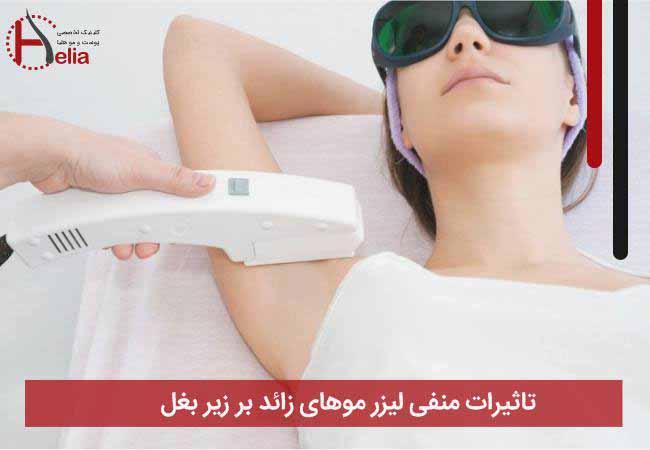 تاثیرات منفی لیزر موهای زائد بر زیر بغل