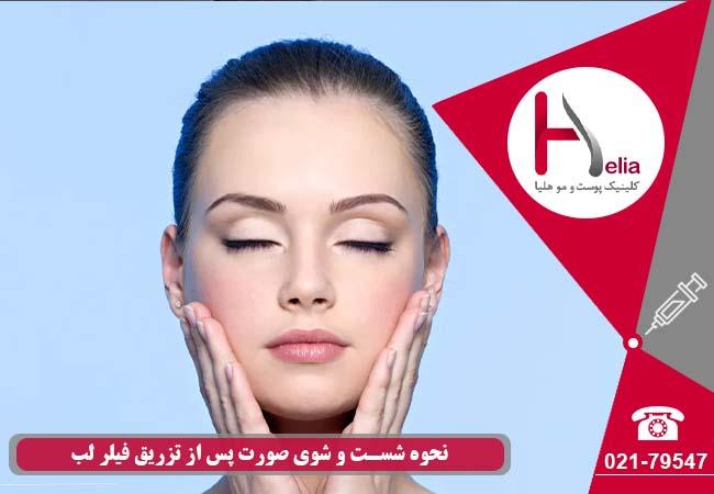 تصویر از نحوه شستن صورت پس از تزریق ژل لب