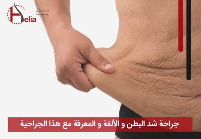جراحة شد البطن و الألفة و المعرفة مع هذا الجراحیة