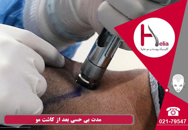 تصویر از روش بی حسی در کاشت مو – نوع بی حسی و مدت زمان تاثیر آن