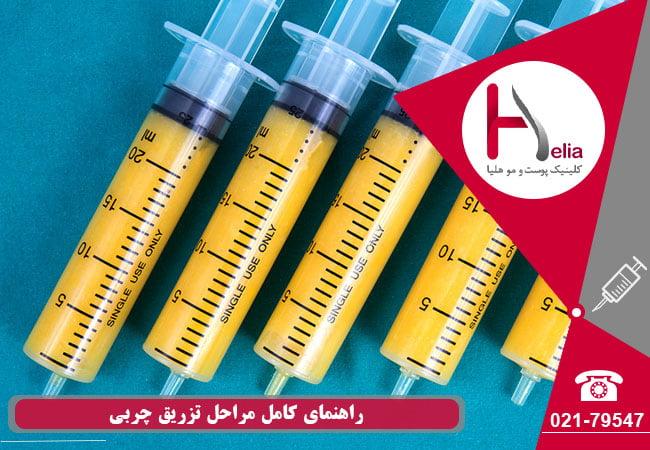تصویر از عمل تزریق چربی در چند مرحله انجام می شود ؟