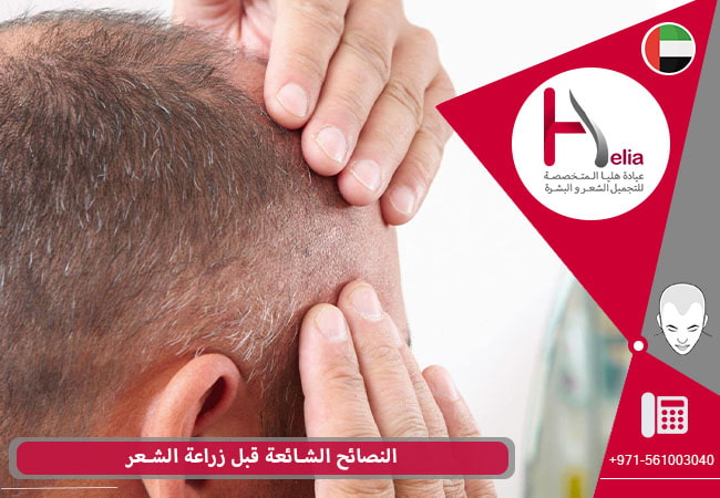 إعداد قبل الجراحة التجمیلیة زراعة الشعر