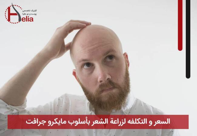 السعر و التکلفه لزراعة الشعر بأسلوب مایکرو جرافت