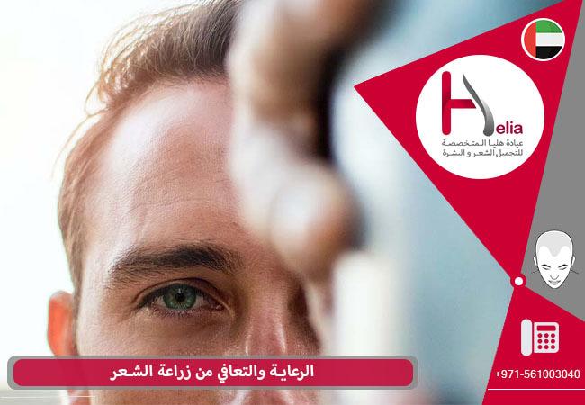 العنایه لفتره النقاهه بعد عملیة زراعة الشعر