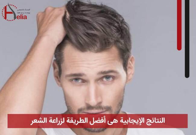 النتائج الإیجابیة هی أفضل الطریقة لزراعة الشعر