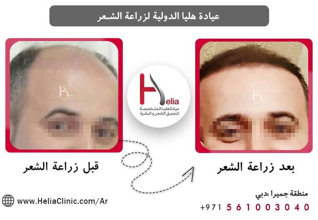 تأثیرات زراعة الشعر لشعر الخفیف