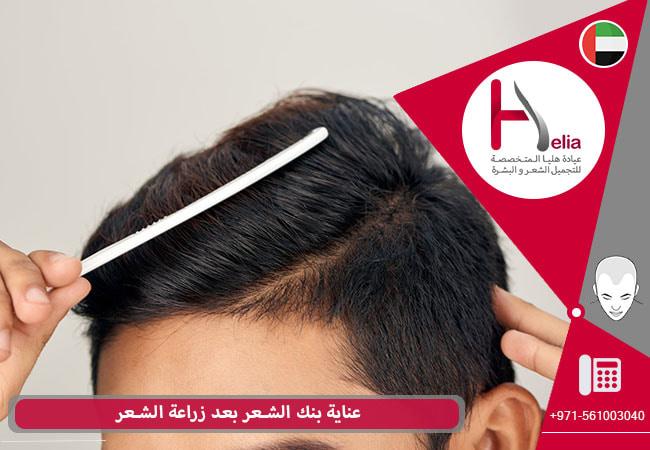 رعایة من بنک الشعر بعد زراعة الشعر