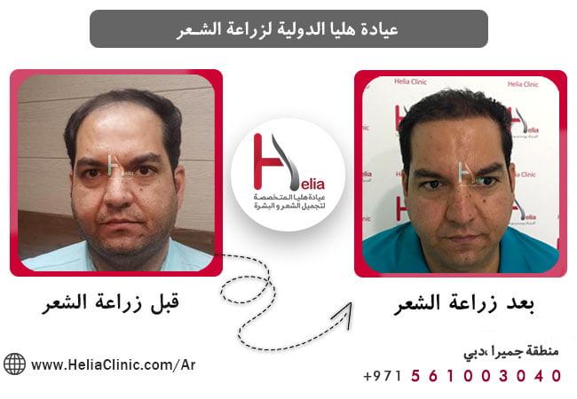 فرق زراعة الشعر بطریقة مایکرو جرافت مع طرق و أسالیب الأخری