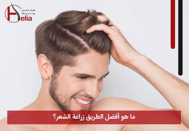 ما هو أفضل طريق لزراعة الشعر