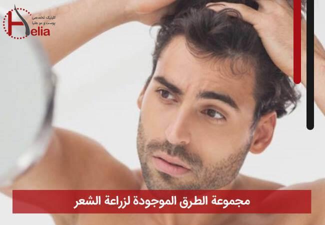 مجموعة الطرق الموجودة لزراعة الشعر
