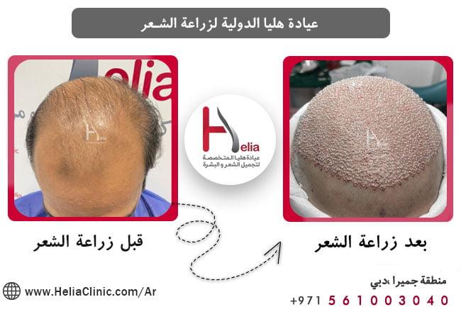 هل تکلفة زراعة الشعر هی معیار المناسبٌ لإختیار الطبیب
