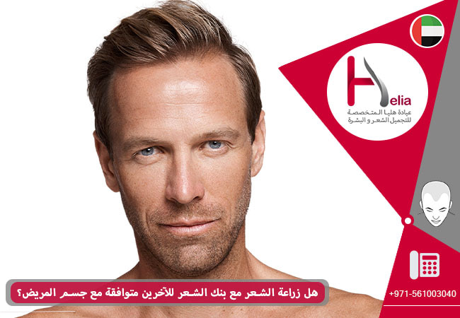 هل زراعة الشعر مع بنک الشعر الآخرین متوافقة مع جسم الشخص المرضی