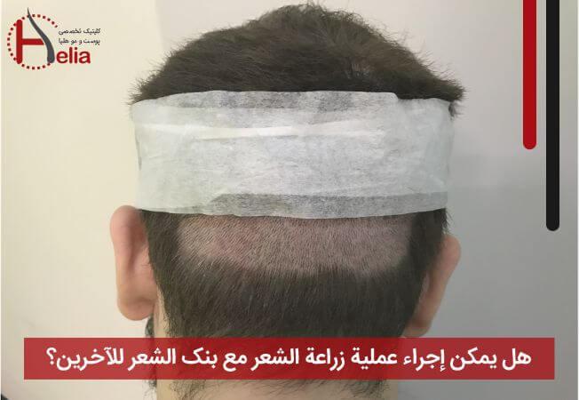 هل یمکن إجراء عملیة زراعة الشعر مع بنک الشعر للآخرین