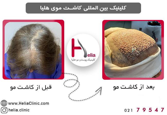 تصویر از هزینه کاشت مو برای خانم ها چقدر است ؟