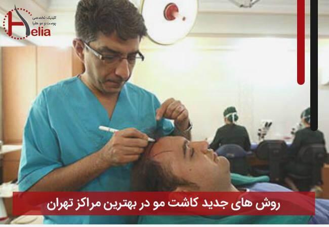 معرفی روش های کاشت مو در کلینیک تهران