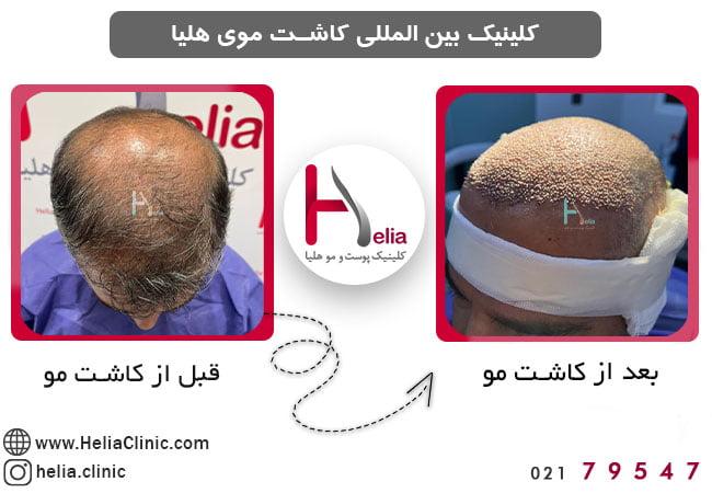 تصویر از حداقل سن کاشت مو چقدر است ؟