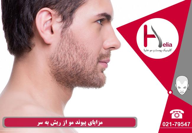 تصویر از بررسی ریزش موهای کاشت شده از ریش