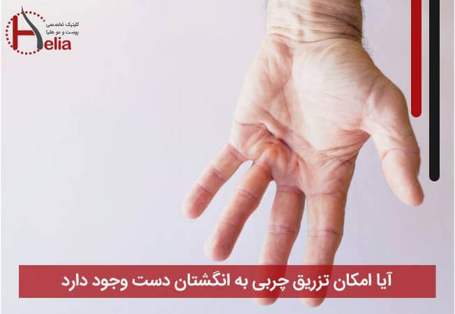 آیا امکان تزریق چربی به انگشتان دست وجود دارد