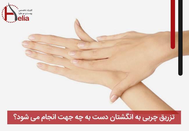 تزریق چربی به انگشتان دست به چه جهت انجام می شود