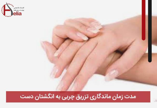 مدت زمان ماندگاری تزریق چربی به انگشتان دست