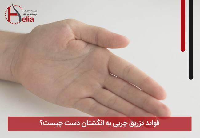 فواید تزریق چربی به انگشتان دست چیست
