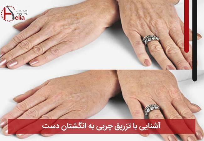 تصویر از آشنایی با تزریق چربی به انگشتان دست