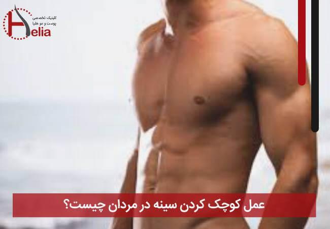تصویر از عمل کوچک کردن سینه در مردان چیست ؟