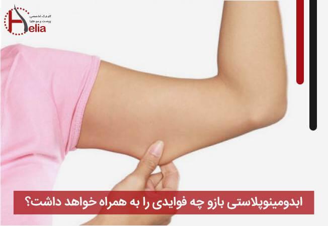 ابدومینوپلاستی بازو چه فوایدی را به همراه خواهد داشت؟