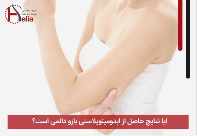 آیا نتایج حاصل از ابدومینوپلاستی بازو دائمی است؟